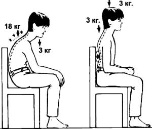 Искривление позвоночника - костопрв - мануальная терапия